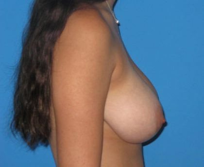 Breast Reduction Before & After Patient #1157