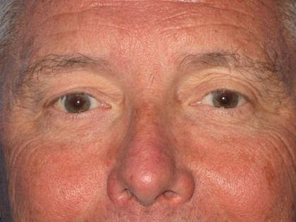 Blepharoplasty Before & After Patient #1419