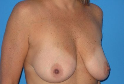 Breast Augmentation with Lift Before & After Patient #1083