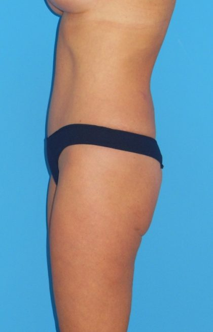 Tummy Tuck Before & After Patient #1359