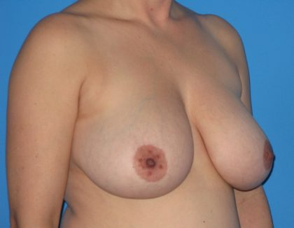 Breast Reduction Before & After Patient #1168