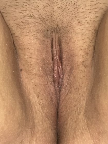 Labiaplasty Before & After Patient #1508