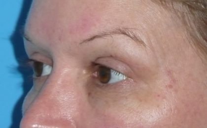 Blepharoplasty Before & After Patient #1426