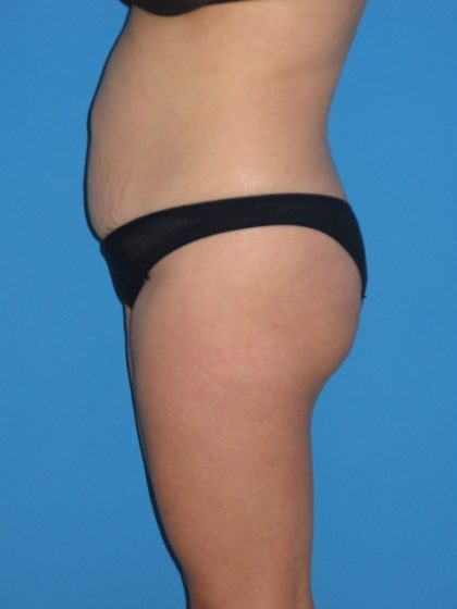 Tummy Tuck Before & After Patient #1381