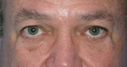 Blepharoplasty Before & After Patient #1429