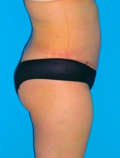 Tummy Tuck Before & After Patient #1372