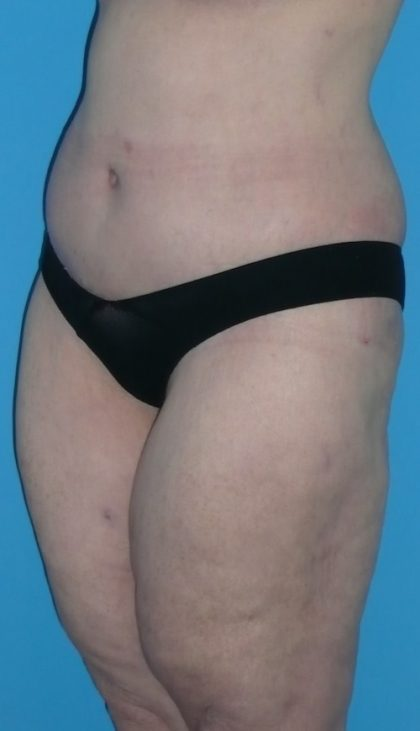 Body Lift Before & After Patient #1282