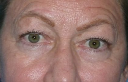 Blepharoplasty Before & After Patient #1434
