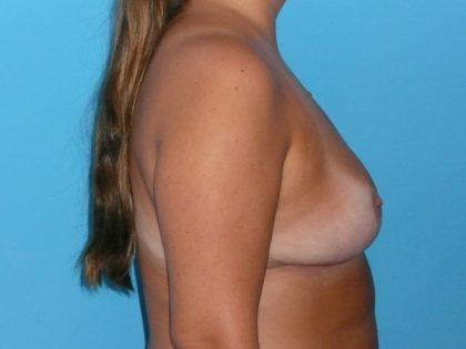 Breast Reduction Before & After Patient #1875