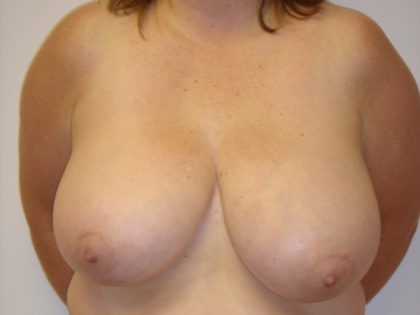 Breast Reduction Before & After Patient #1886