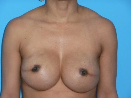 Breast Reconstruction Before & After Patient #1840