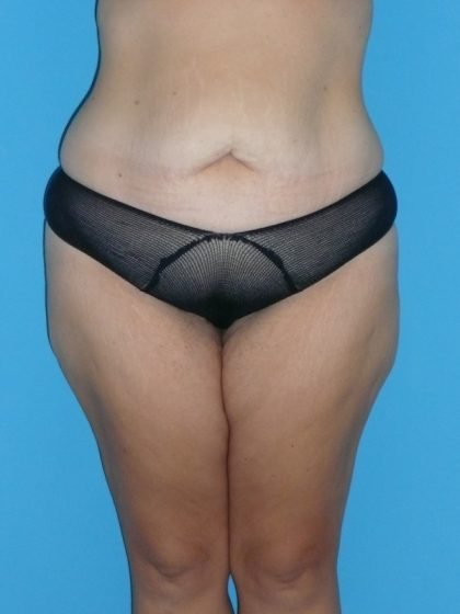 Tummy Tuck Before & After Patient #2142