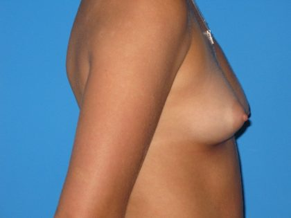 Breast Augmentation Before & After Patient #1580