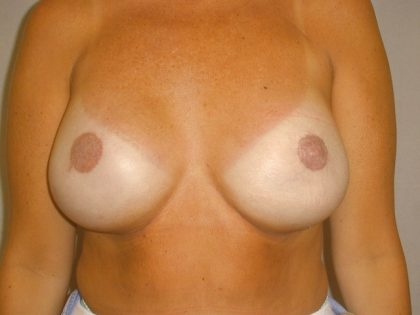 Breast Reconstruction Before & After Patient #1847