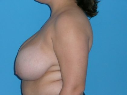 Breast Reduction Before & After Patient #1904