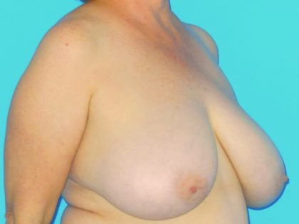 Breast Reduction Before & After Patient #1915