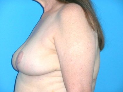 Breast Reduction Before & After Patient #1922