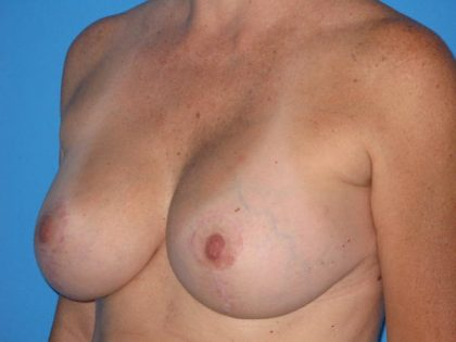 Breast Augmentation with Lift Before & After Patient #1668