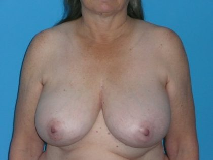 Breast Reduction Before & After Patient #1944