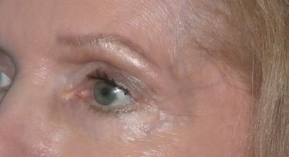 Brow Lift Before & After Patient #2118