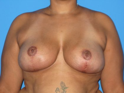Breast Reduction Before & After Patient #1947