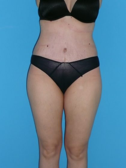 Tummy Tuck Before & After Patient #2153