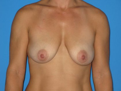 Breast Augmentation with Lift Before & After Patient #1673