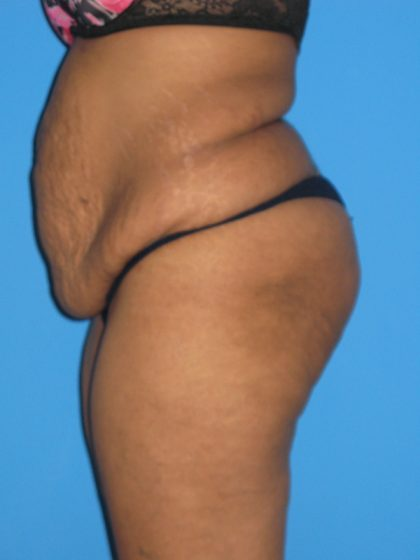 Tummy Tuck Before & After Patient #2160