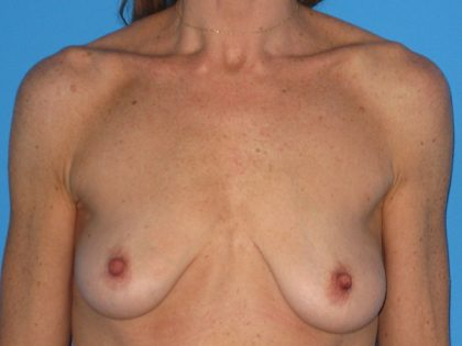 Breast Augmentation with Lift Before & After Patient #1684