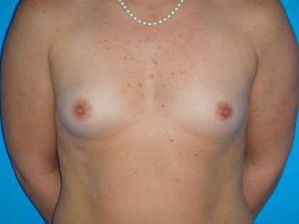 Breast Augmentation Before & After Patient #1591