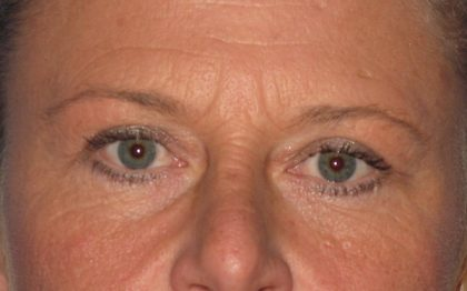 Blepharoplasty Before & After Patient #2182