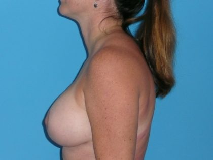 Breast Augmentation with Lift Before & After Patient #1702