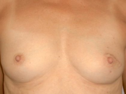 Breast Reconstruction Before & After Patient #1858