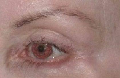 Brow Lift Before & After Patient #2121