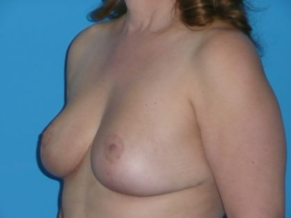 Breast Reduction Before & After Patient #1961