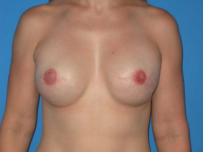 Breast Reconstruction Before & After Patient #1861