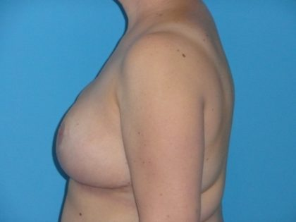 Breast Reduction Before & After Patient #1997