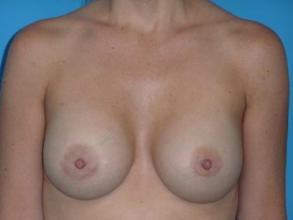 Breast Augmentation Before & After Patient #1613
