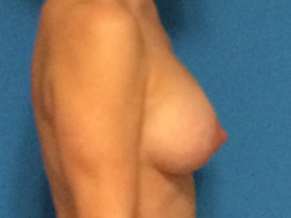 Breast Augmentation with Lift Before & After Patient #1724