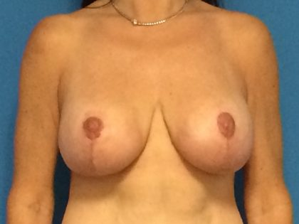 Breast Augmentation with Lift Before & After Patient #1738