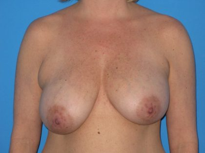 Breast Reduction Before & After Patient #2008