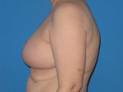 Breast Reduction Before & After Patient #2013