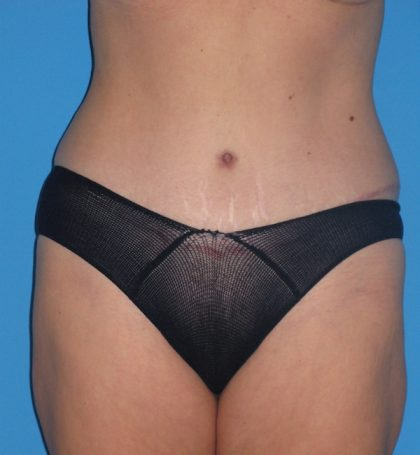 Tummy Tuck Before & After Patient #2167
