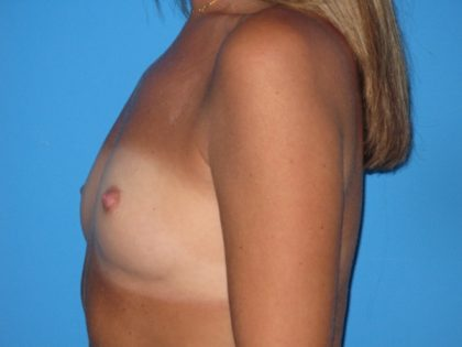 Breast Augmentation Before & After Patient #1635