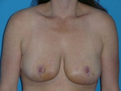 Breast Reduction Before & After Patient #2024