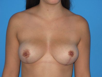 Breast Reduction Before & After Patient #2047