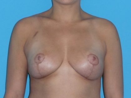 Breast Reduction Before & After Patient #2069