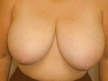 Breast Reduction Before & After Patient #2080