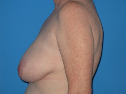Breast Reduction Before & After Patient #2102