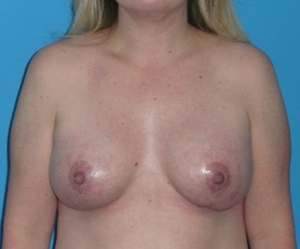 Breast Augmentation Before & After Patient #1657